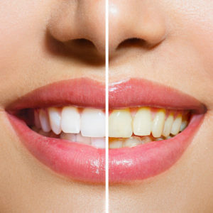bigstock-woman-teeth-before-and-after-w-55669106